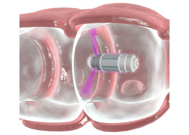 Check-Cap desarrolla una píldora para detectar el cáncer de colon 30