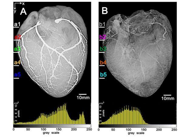 Primeras imágenes de un corazón inyectado con metal líquido
