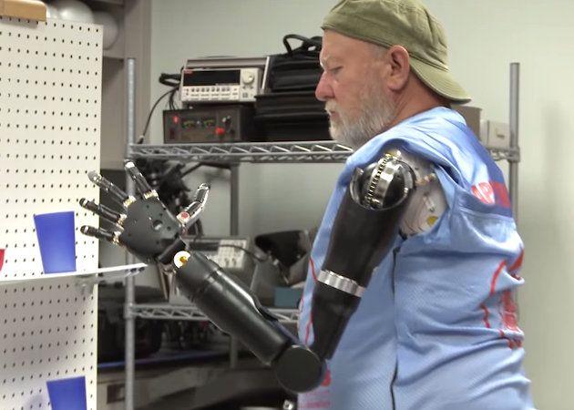 Amputado de ambos brazos manejando brazos roboticós