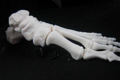 Huesos impresos en 3D, una realidad en China