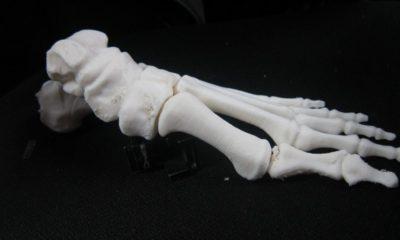 Huesos impresos en 3D, una realidad en China 29