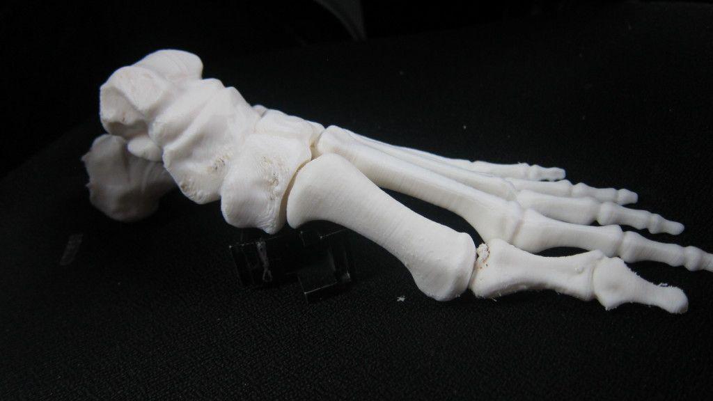 Huesos impresos en 3D, una realidad en China 31