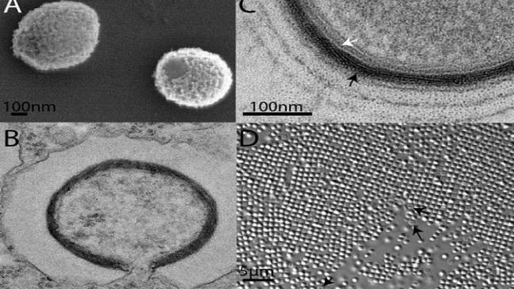Científicos quieren reanimar un virus gigante de hace 30.000 años 32