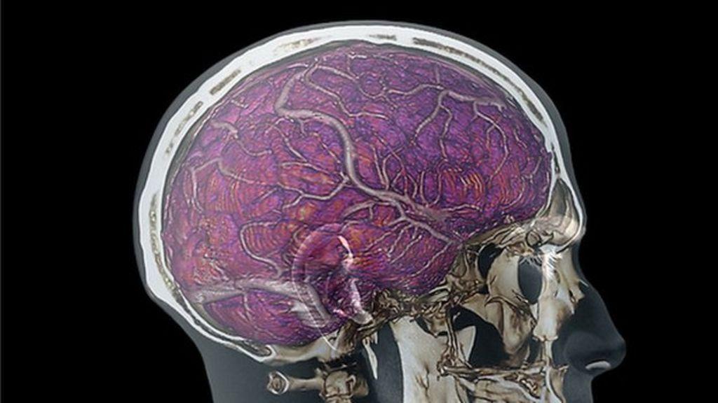 Especial: Diez grandes mitos sobre el cerebro humano 31