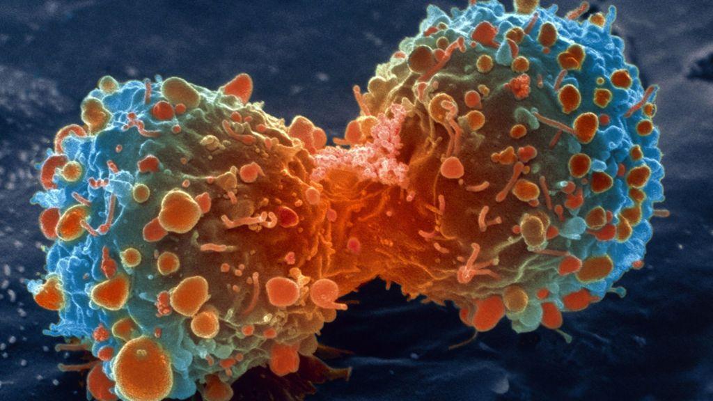 Descubren una nueva forma de luchar contra el cáncer 29
