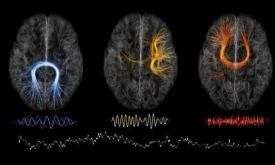 Autenticación mediante mapas cerebrales, una realidad 105
