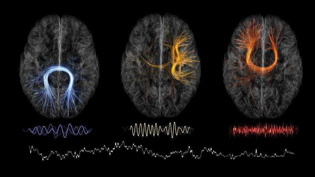 Autenticación mediante mapas cerebrales, una realidad 30