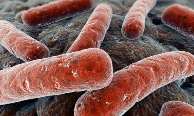 Encuentran bacteria resistente a los antibióticos críticos 34