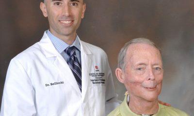 Imprimen en 3D una mandíbula para un enfermo de cáncer 64