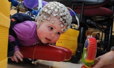 Este dispositivo ayuda a luchar contra la parálisis cerebral 84
