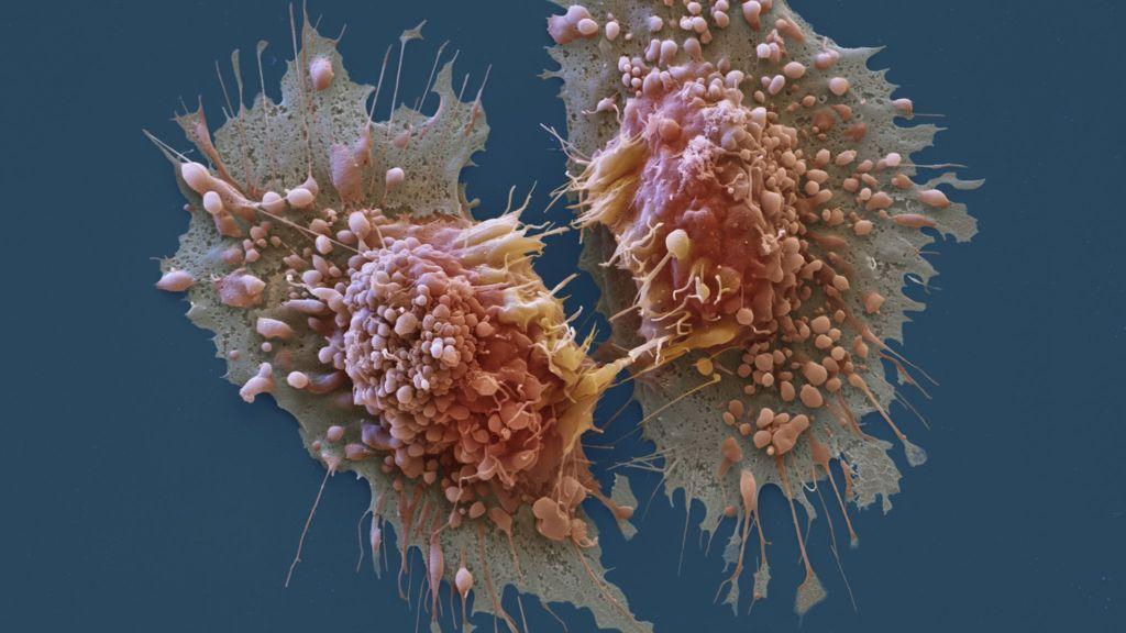 Luz para atacar directamente al cáncer, otra gran esperanza 29