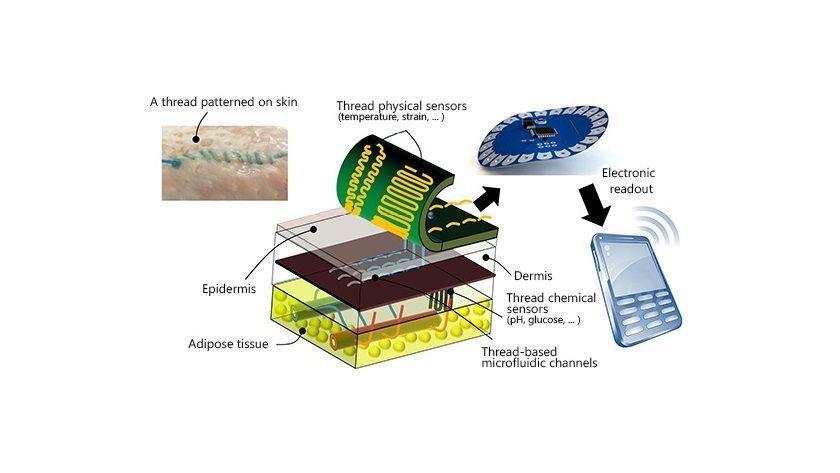 Puntos de sutura inteligentes, una gran innovación 29
