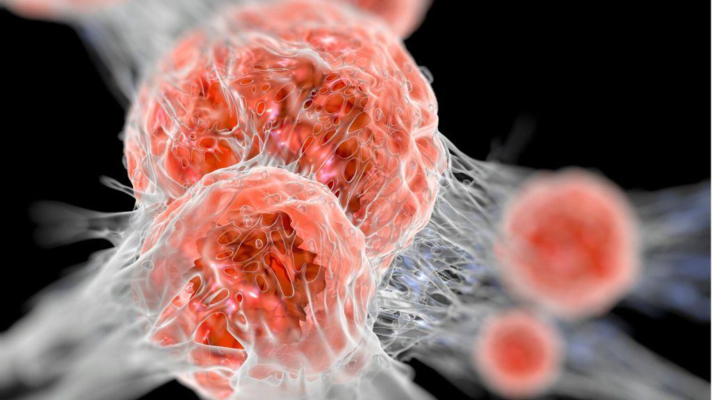 Microsoft quiere acabar con el cáncer en diez años 30