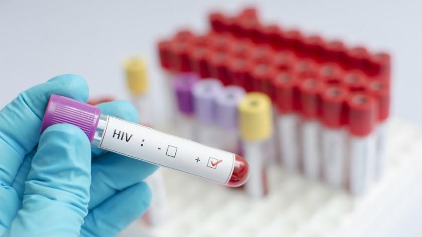 La ciencia exonera finalmente al paciente cero del VIH