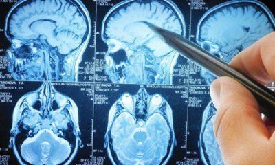 El cerebro acerca sus regiones para enfrentar tareas complejas 76