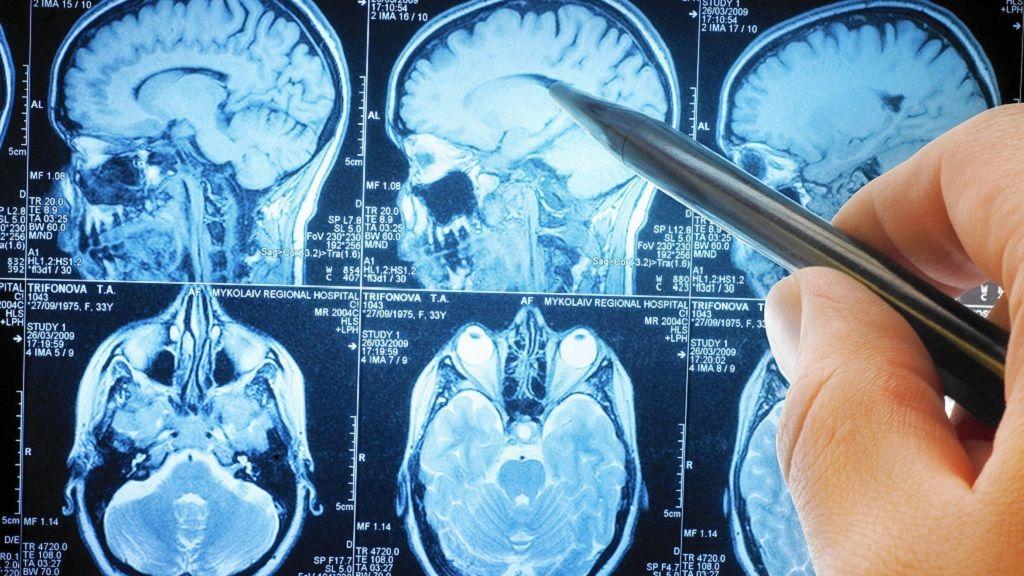 El cerebro acerca sus regiones para enfrentar tareas complejas 31