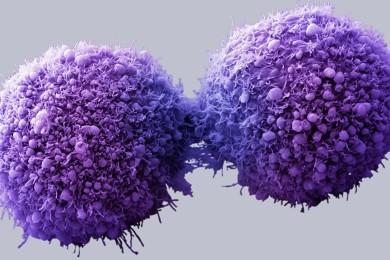 Crean nanodiscos para dar terapias personalizadas contra el cáncer