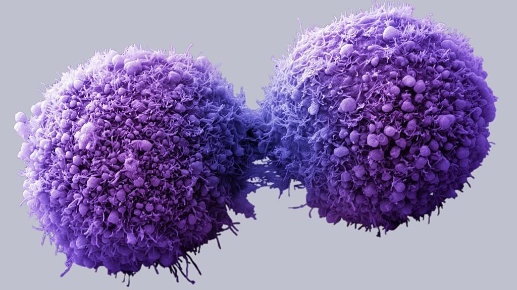 Crean nanodiscos para dar terapias personalizadas contra el cáncer 36