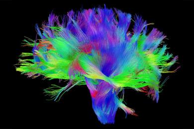 Mapear el cerebro, una nueva forma de luchar contra el Parkinson