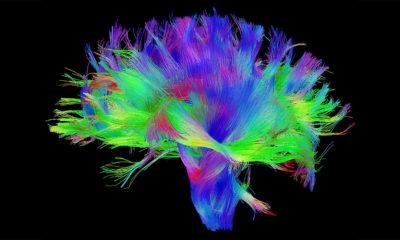 Mapear el cerebro, una nueva forma de luchar contra el Parkinson 50