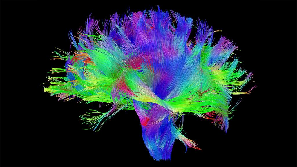 Mapear el cerebro, una nueva forma de luchar contra el Parkinson 36