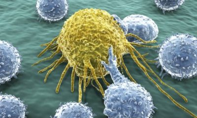 Curan cáncer en dos niños utilizando células T modificadas 79