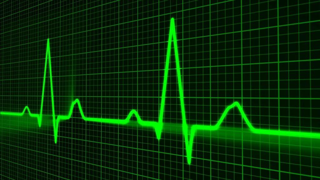 Crean inteligencia artificial que predice infartos con gran precisión 31