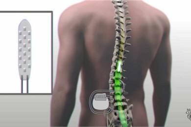 Implantes eléctricos en la espina dorsal, una gran promesa