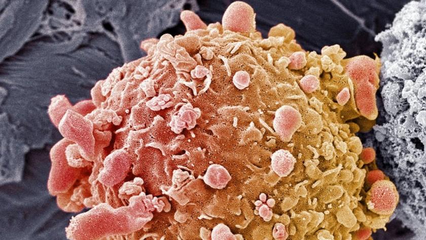 Estados Unidos aprueba el primer fármaco para tratar cualquier cáncer