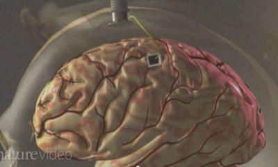 ARM quiere desarrollar SoCs que se puedan implantar en el cerebro 60