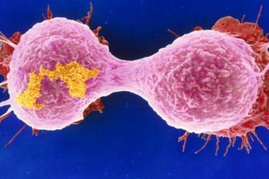 Microscopios mejorados para luchar contra el cáncer de mama
