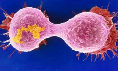 Microscopios mejorados para luchar contra el cáncer de mama 119
