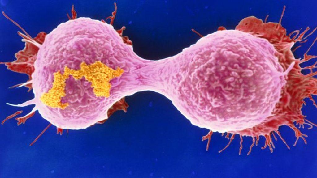 Microscopios mejorados para luchar contra el cáncer de mama 35