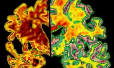 Una IA puede detectar el Alzheimer diez años antes de que se inicien sus síntomas 86