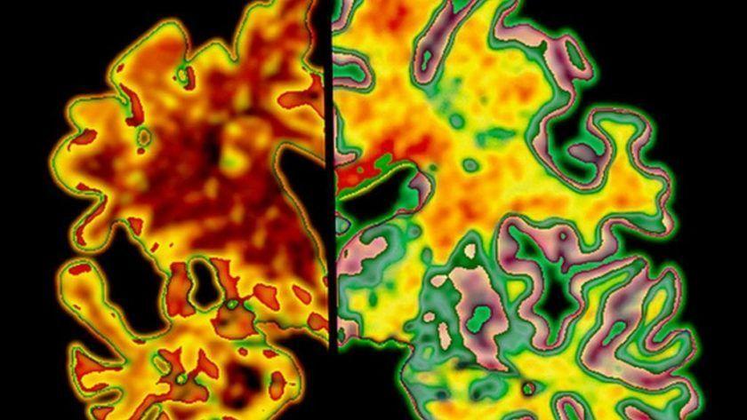 Una IA puede detectar el Alzheimer diez años antes de que se inicien sus síntomas