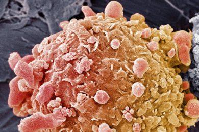Inteligencia artificial detecta cáncer de colon con gran precisión