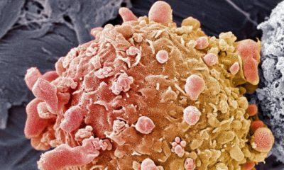 Inteligencia artificial detecta cáncer de colon con gran precisión 75