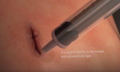 Desarrollan pegamento médico que ayuda a cerrar heridas en órganos 95