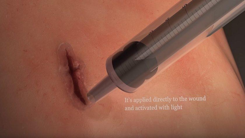 Desarrollan pegamento médico que ayuda a cerrar heridas en órganos