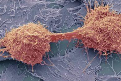 CancerSEEK, detección precoz de 8 tipos de cáncer mediante un simple análisis de sangre