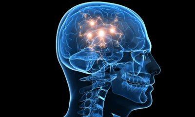 Marcapasos cerebral: una herramienta con mucho potencial 49